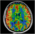 Neuro Imaging MRI